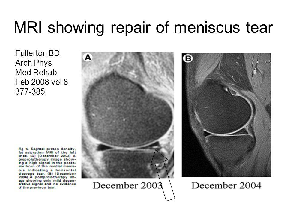 MRI showing repair of meniscus tear Fullerton BD, Arch Phys Med Rehab Feb 2008 vol 8 377-385