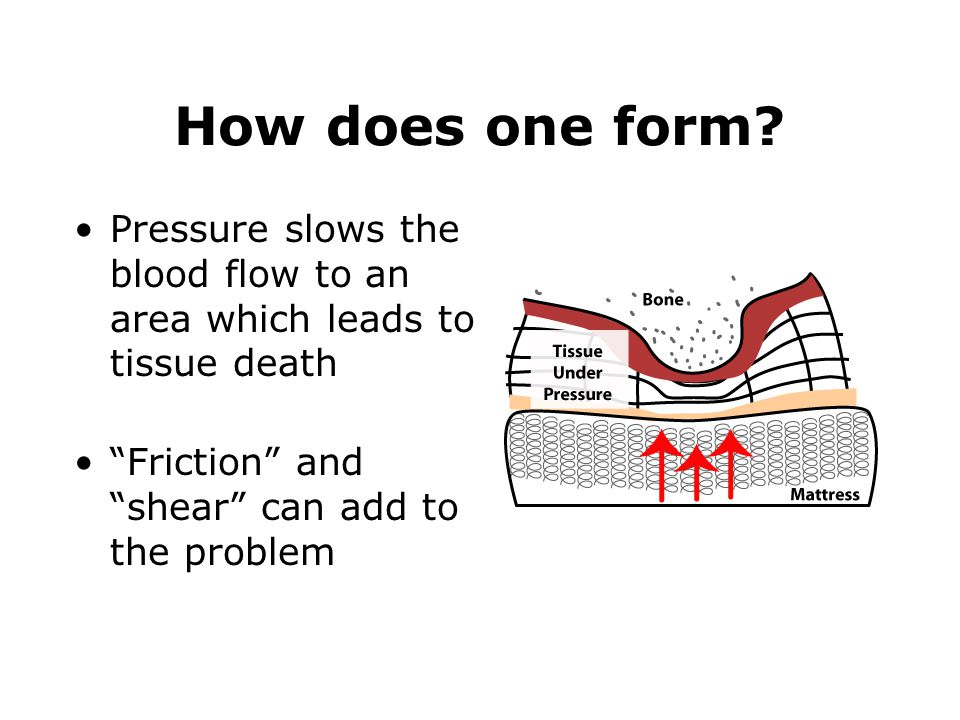 "How does one form? Pressure slows the blood flow to an area which leads to tissue death ""Friction"" and ""shear"" can add to the problem"