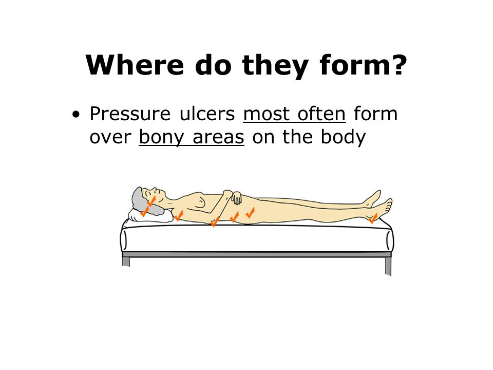 Where do they form? Pressure ulcers most often form over bony areas on the body