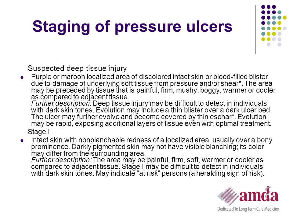 Staging of pressure ulcers Suspected deep tissue injury Purple or maroon localized area of discolored intact skin or blood-filled blister due to damag