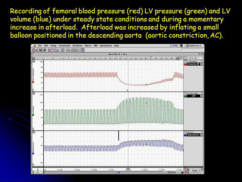 Recording of femoral blood pressure (red) LV pressure (green) and LV volume (blue) under steady state conditions and during a momentary increase in afterload.