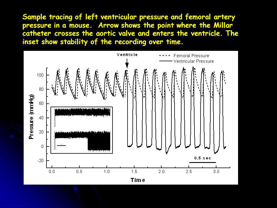 Sample tracing of left ventricular pressure and femoral artery pressure in a mouse.