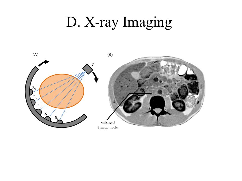 D. X-ray Imaging S R1R1 R2R2 R3R3 R4R4 R5R5 enlarged lymph node (A) (B)