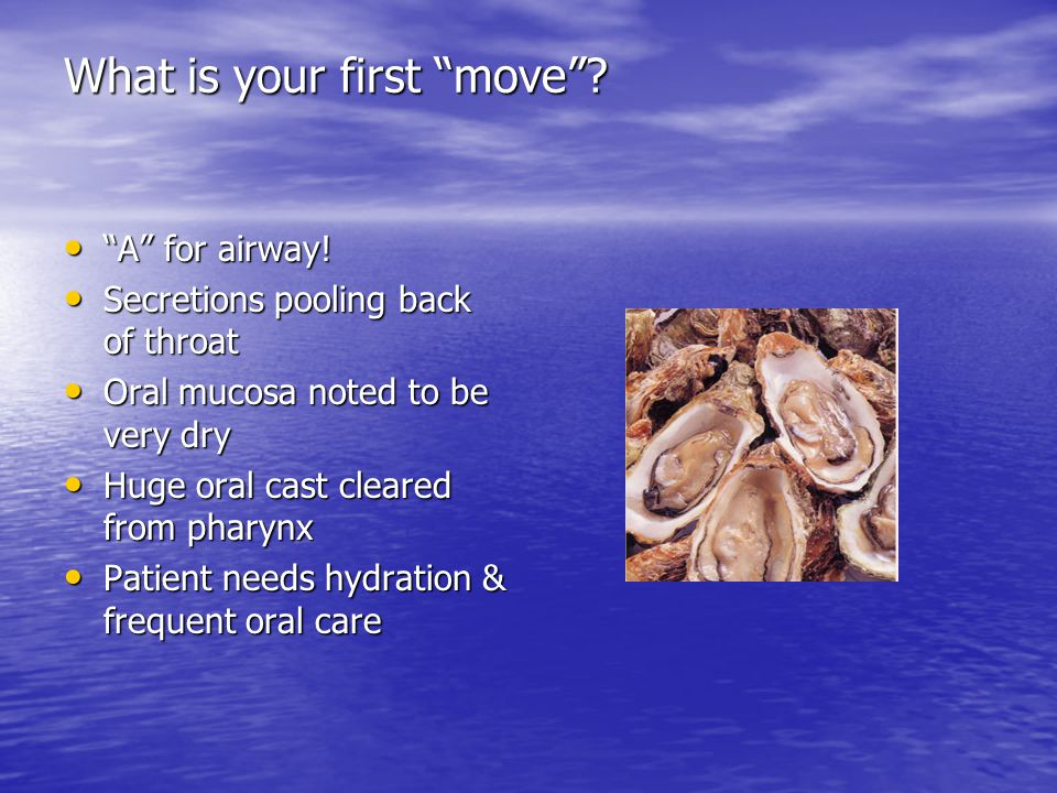 What is your first move . A for airway. A for airway.