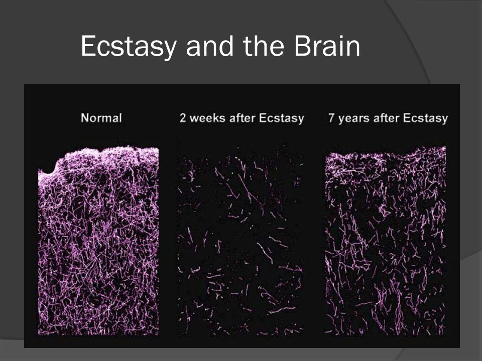 Ecstasy and the Brain