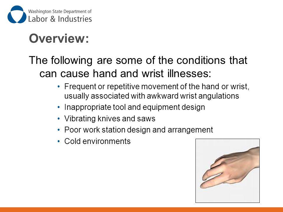 Neutral Wrist  Maintain neutral (handshake) wrist position. Straight wrist (Good) Bent wrist (Bad)