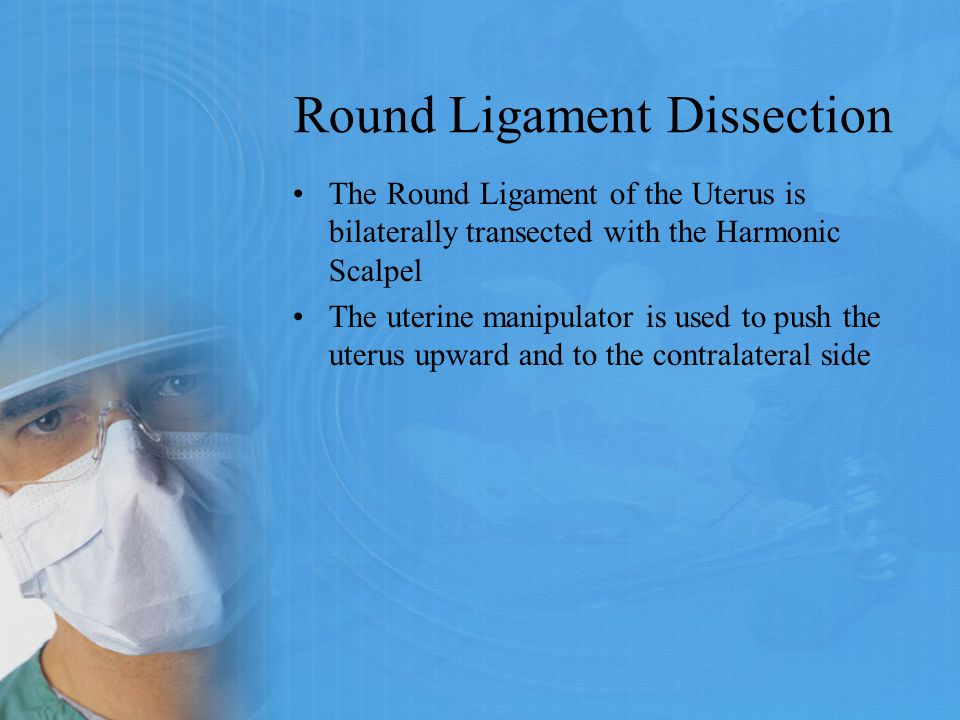 Round Ligament Dissection The Round Ligament of the Uterus is bilaterally transected with the Harmonic Scalpel The uterine manipulator is used to push