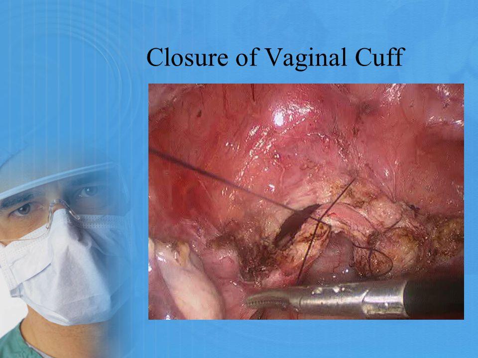 Closure of Vaginal Cuff