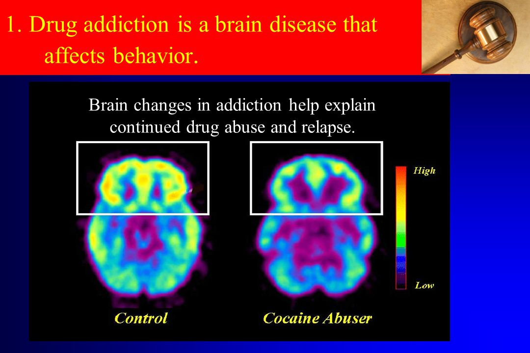 1.Drug addiction is a brain disease that affects behavior.