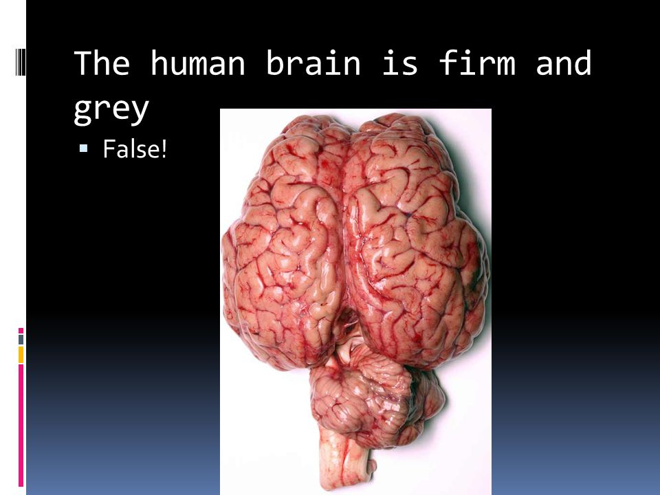 The human brain is firm and grey  False!