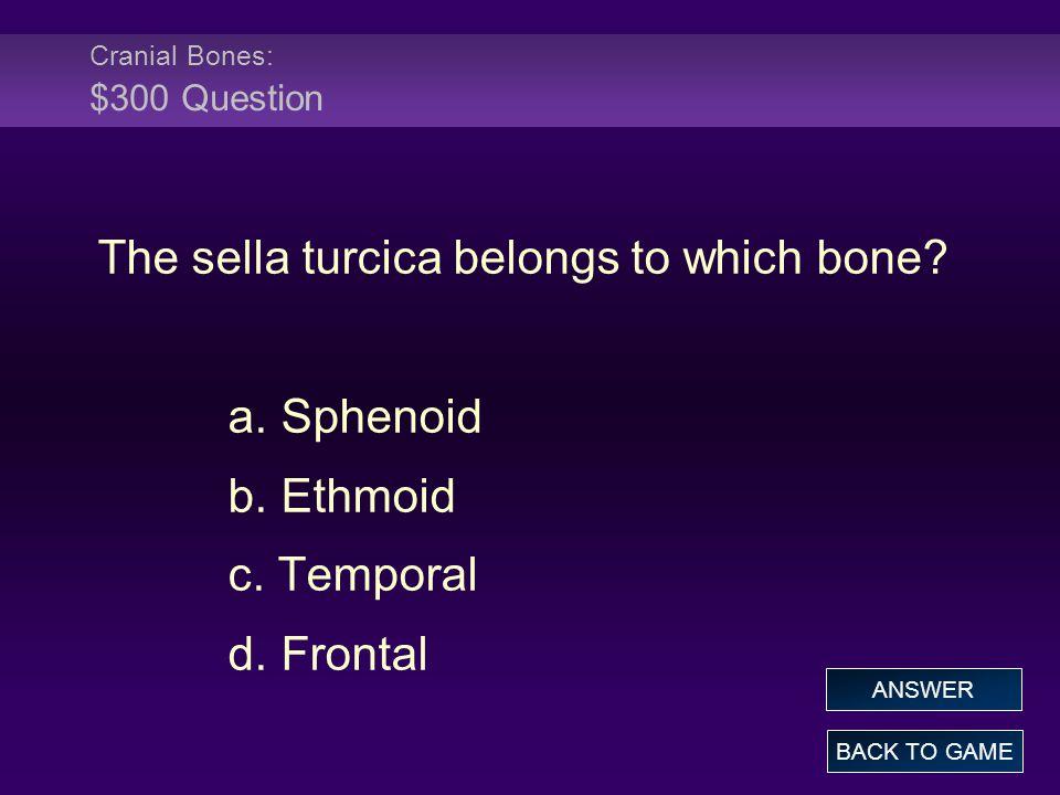 Cranial Bones: $300 Question The sella turcica belongs to which bone.