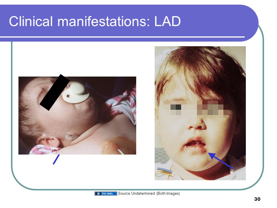 Clinical manifestations: LAD 30 Source Undetermined (Both Images)