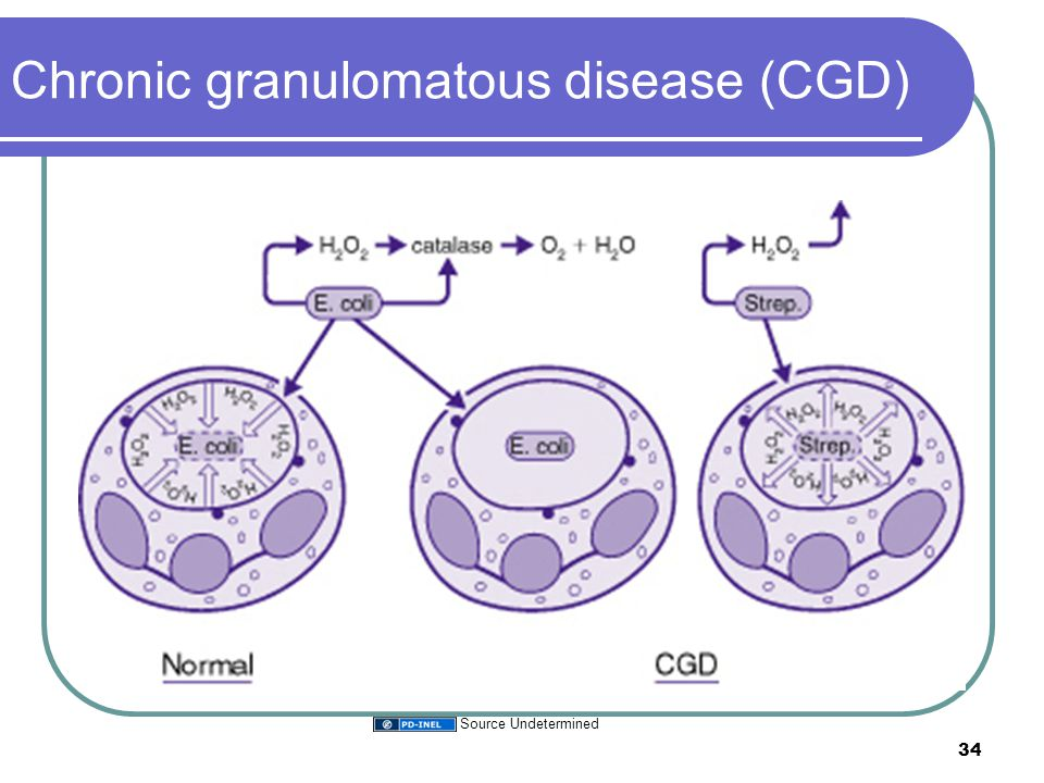Chronic granulomatous disease (CGD) 34 Source Undetermined