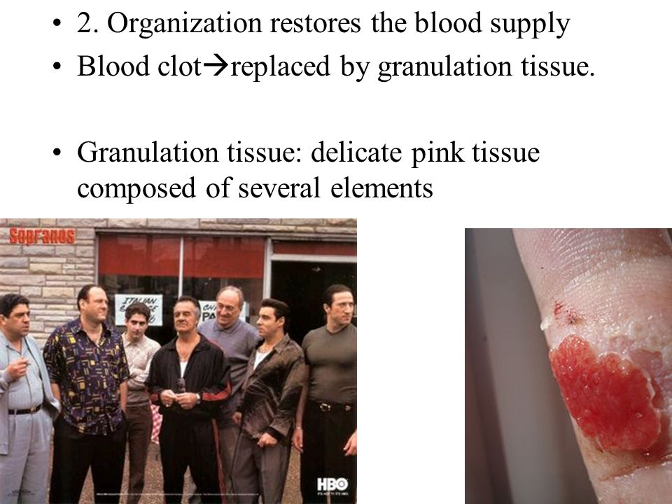 2. Organization restores the blood supply Blood clot  replaced by granulation tissue.