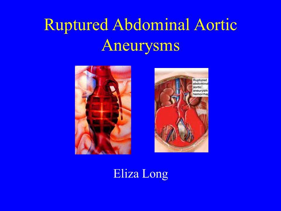 Ruptured Abdominal Aortic Aneurysms Eliza Long