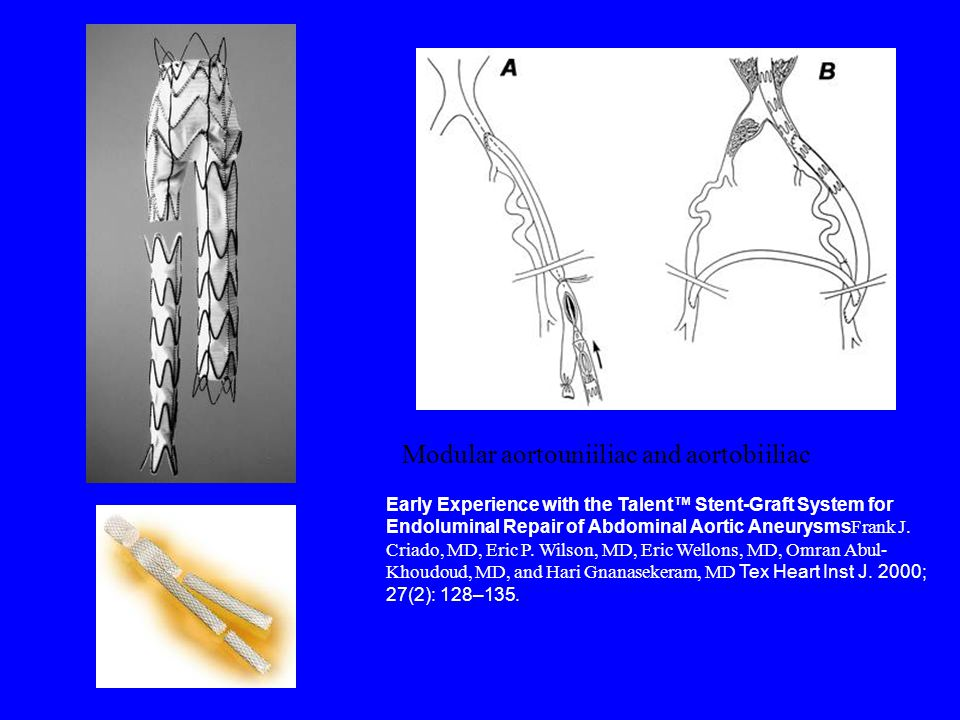 Early Experience with the Talent™ Stent-Graft System for Endoluminal Repair of Abdominal Aortic Aneurysms Frank J.
