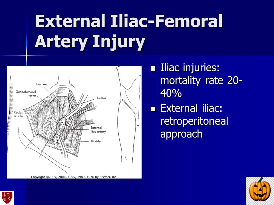 External Iliac-Femoral Artery Injury Iliac injuries: mortality rate 20- 40% Iliac injuries: mortality rate 20- 40% External iliac: retroperitoneal app