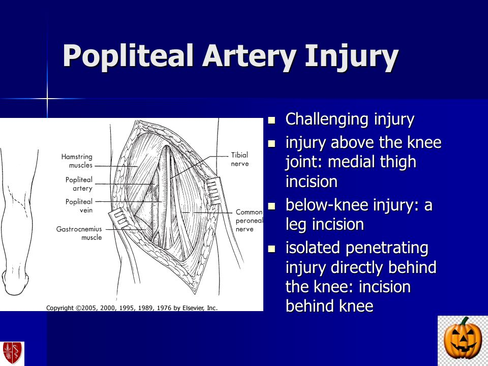 Popliteal Artery Injury Challenging injury Challenging injury injury above the knee joint: medial thigh incision injury above the knee joint: medial t