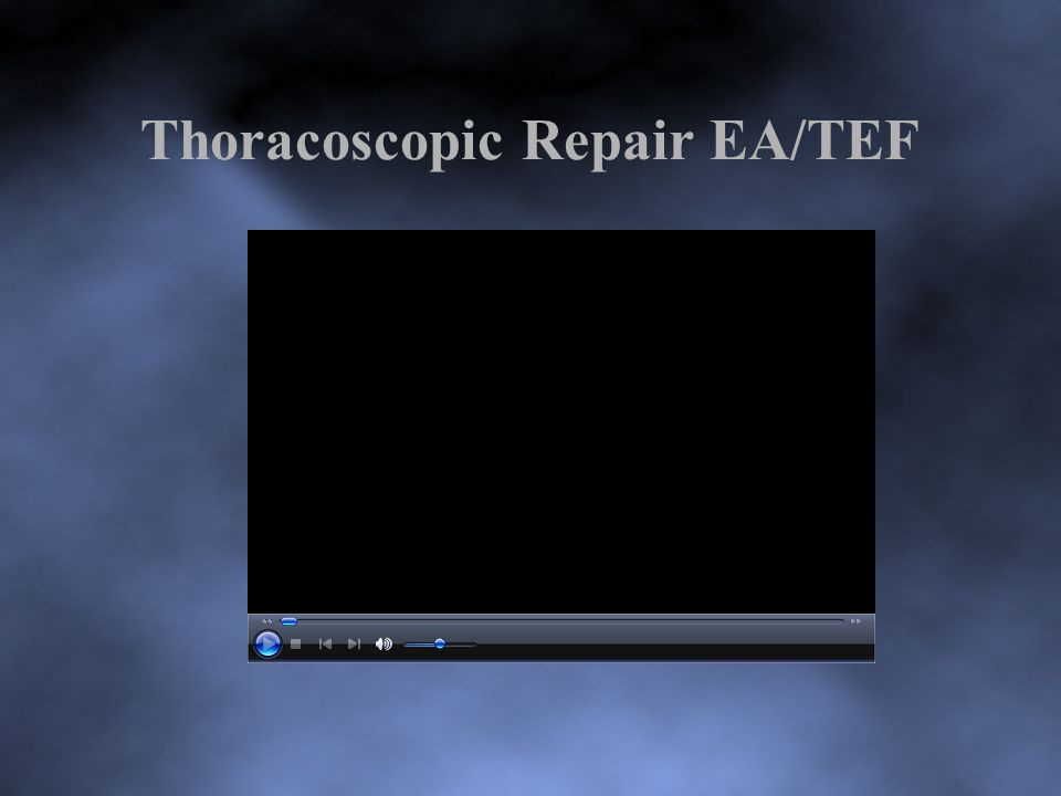Thoracoscopic Repair EA/TEF