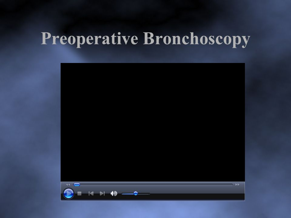 Preoperative Bronchoscopy
