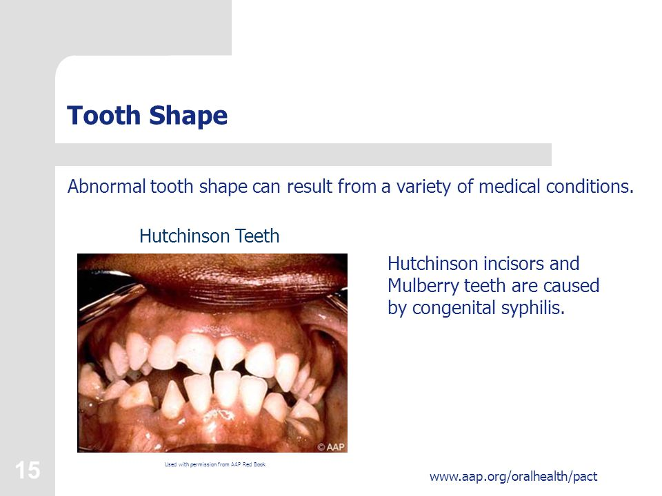 15 www.aap.org/oralhealth/pact Tooth Shape Abnormal tooth shape can result from a variety of medical conditions.