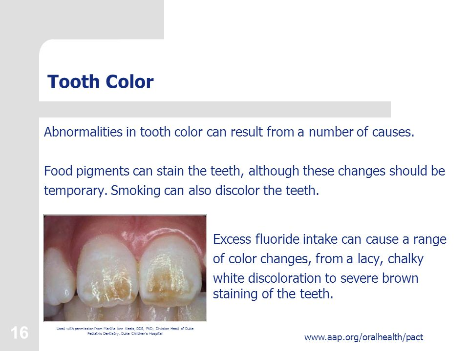 16 www.aap.org/oralhealth/pact Tooth Color Abnormalities in tooth color can result from a number of causes.