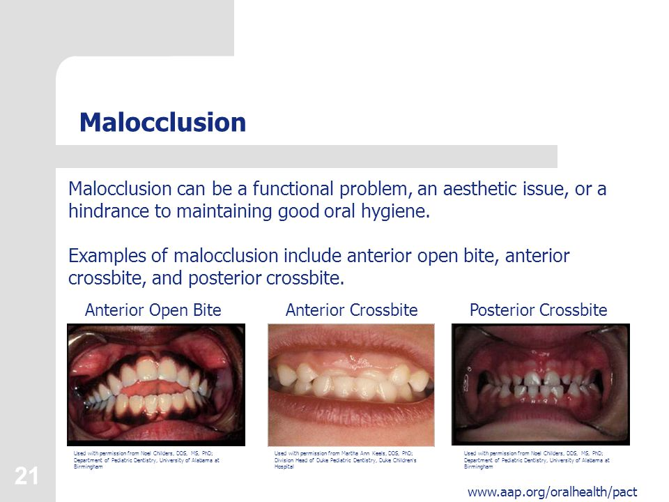 21 www.aap.org/oralhealth/pact Malocclusion Malocclusion can be a functional problem, an aesthetic issue, or a hindrance to maintaining good oral hygiene.