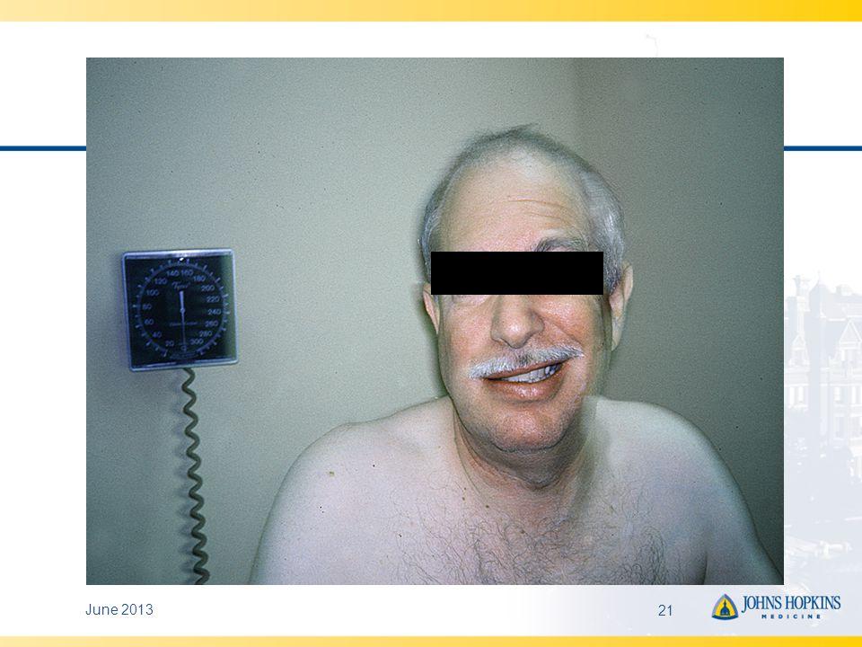 Diagnosis – Facial Palsy Up to 25% due to B.
