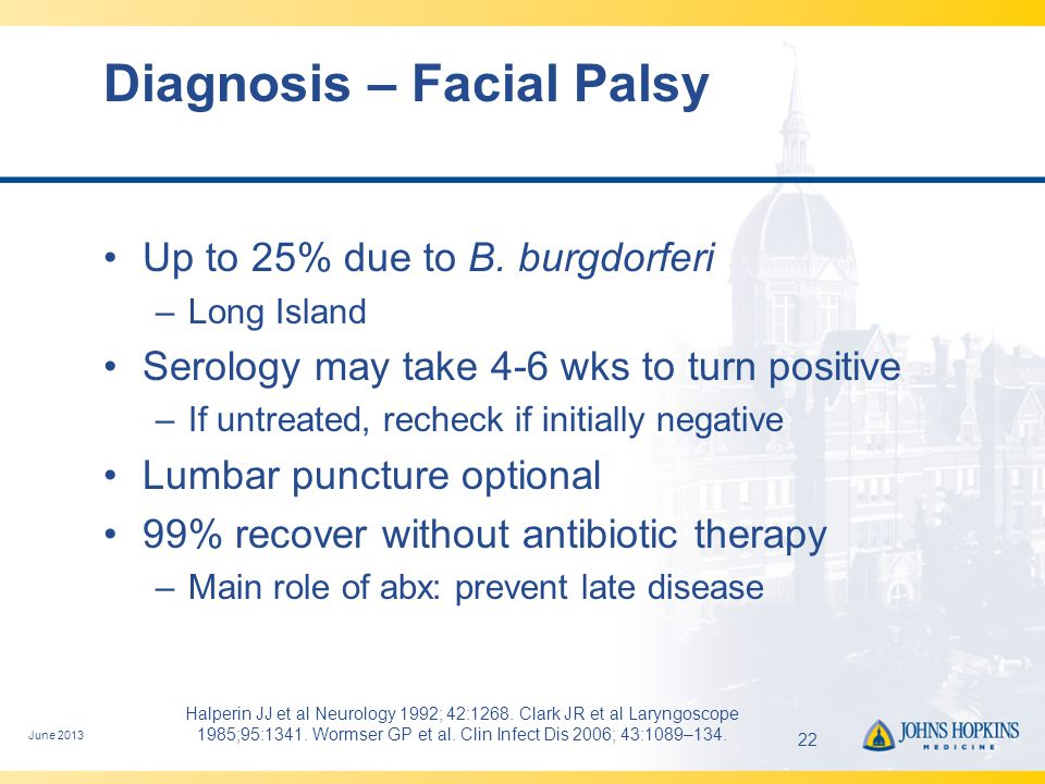 Early Disseminated Lyme Disease: Neurologic Manifestations CN palsies Radiculoneuritis Mononeuritis multiplex Meningitis Encephalomyelitis (rare) Optic Neuritis –children >> adults Possible associations –Hearing loss Usually afebrile CSF –<10% PMNs –May be confused with viral meningitis Most seropositive at presentation Other tests: –Helpful: CSF index, intrathecal Ab production –Not helpful: PCR June 201323Wormser GP et al.