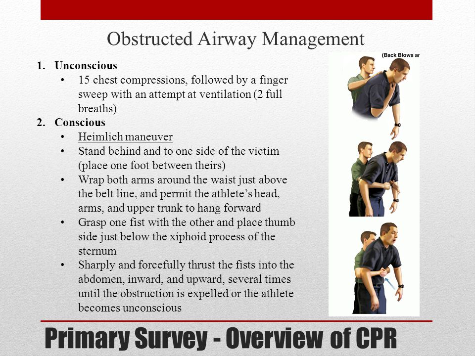 Primary Survey - Overview of CPR Obstructed Airway Management 1.Unconscious 15 chest compressions, followed by a finger sweep with an attempt at venti