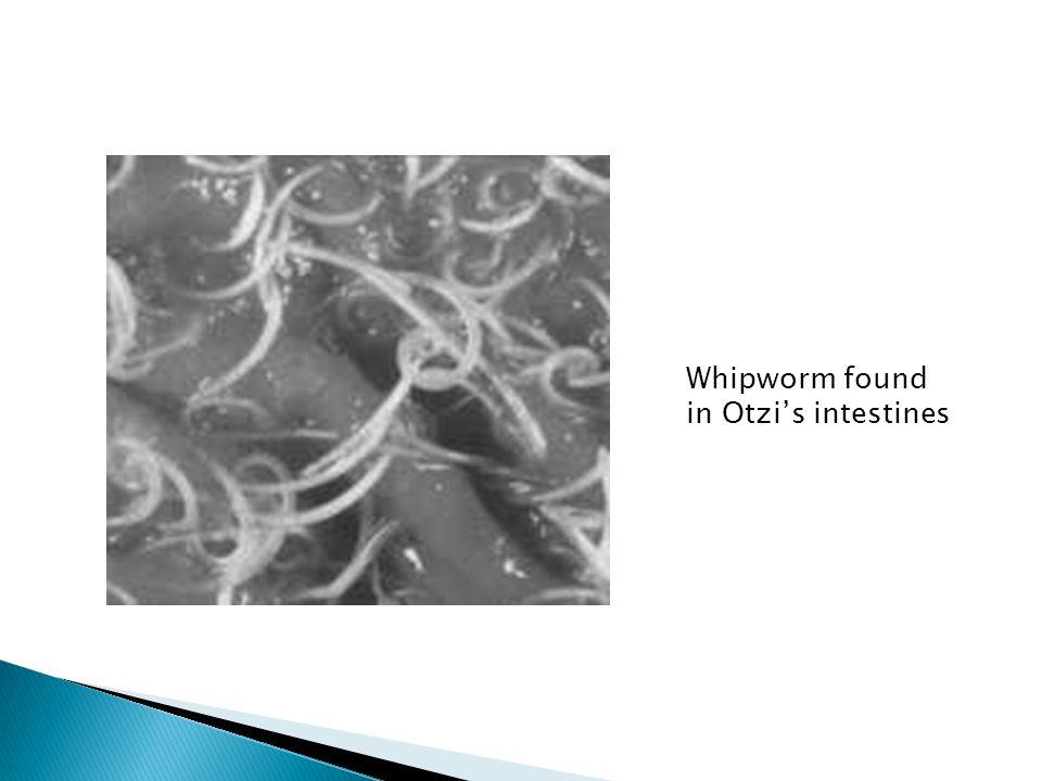 Whipworm found in Otzi's intestines