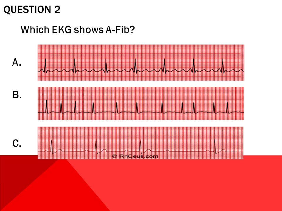 QUESTION 2 Which EKG shows A-Fib? A. B. C.