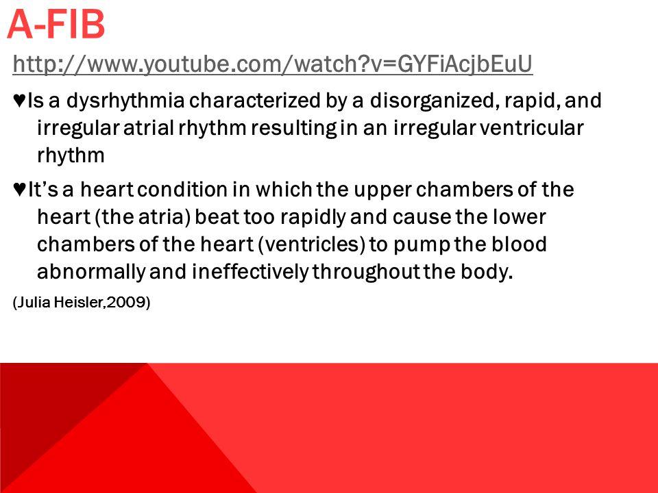 A-FIB http://www.youtube.com/watch?v=GYFiAcjbEuU ♥ Is a dysrhythmia characterized by a disorganized, rapid, and irregular atrial rhythm resulting in a