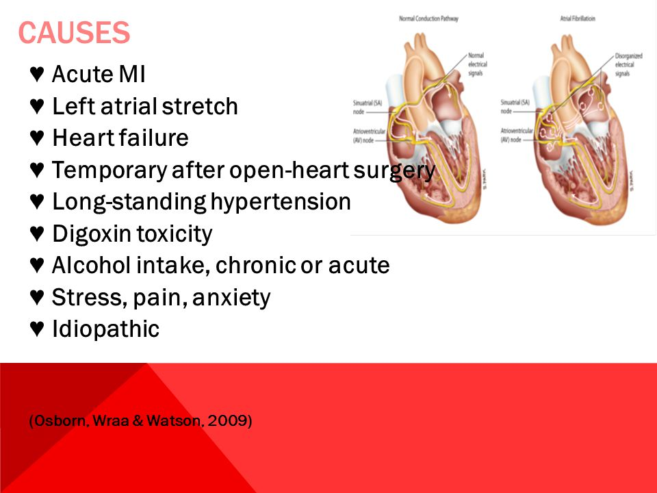 CAUSES ♥ Acute MI ♥ Left atrial stretch ♥ Heart failure ♥ Temporary after open-heart surgery ♥ Long-standing hypertension ♥ Digoxin toxicity ♥ Alcohol