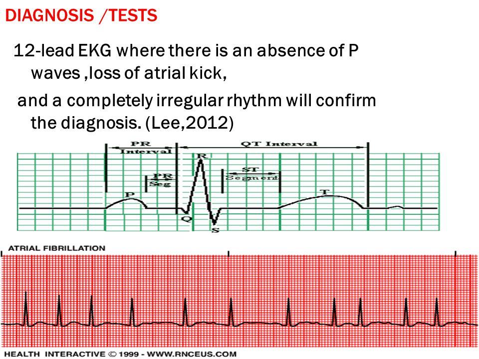 TREATMENTS ♥ Rate Control.♥ Anticoagulation. ♥ Cardioversion.