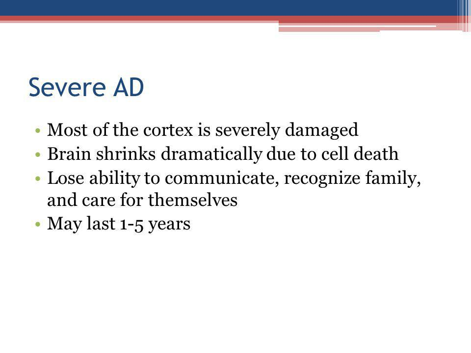 Severe AD Most of the cortex is severely damaged Brain shrinks dramatically due to cell death Lose ability to communicate, recognize family, and care