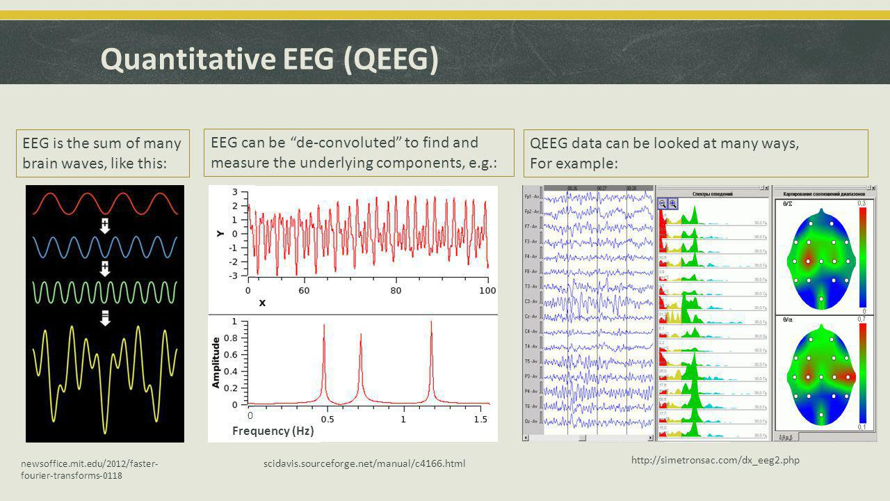 "Quantitative EEG (QEEG) EEG is the sum of many brain waves, like this: EEG can be ""de-convoluted"" to find and measure the underlying components, e.g.:"