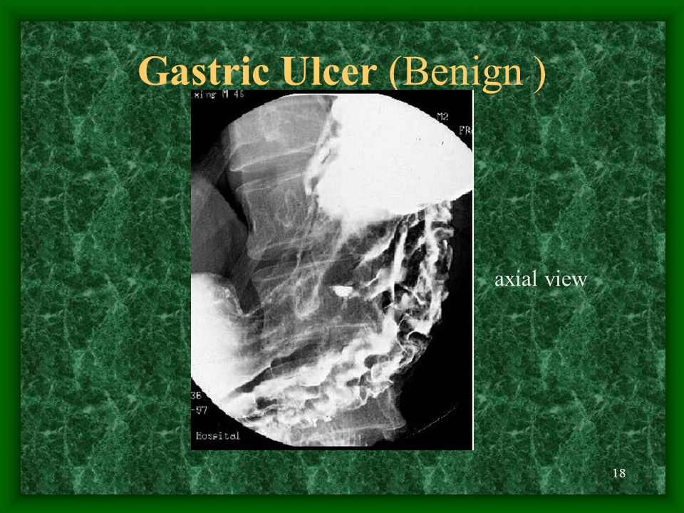 18 Gastric Ulcer (Benign ) axial view