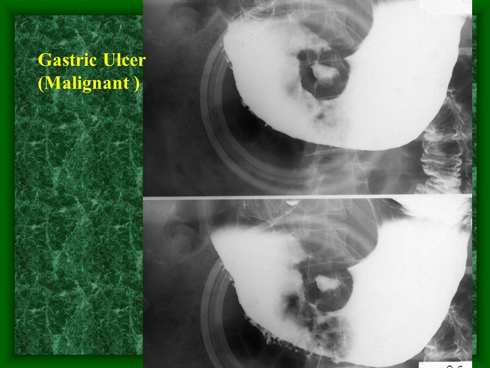 25 Gastric Ulcer (Malignant )