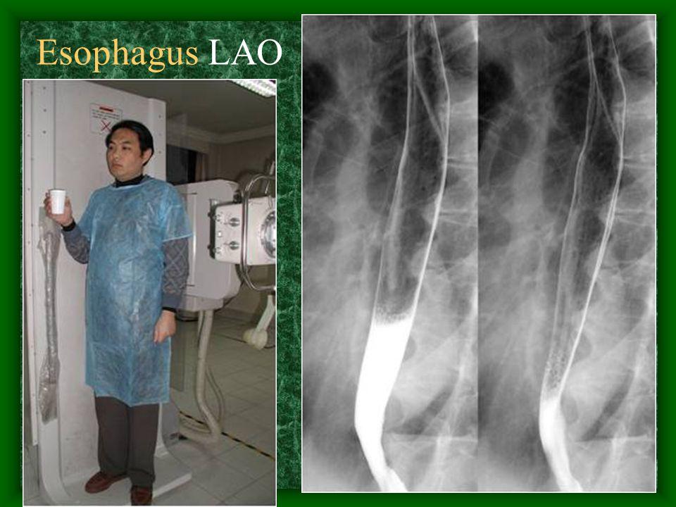 11 Esophagus LAO