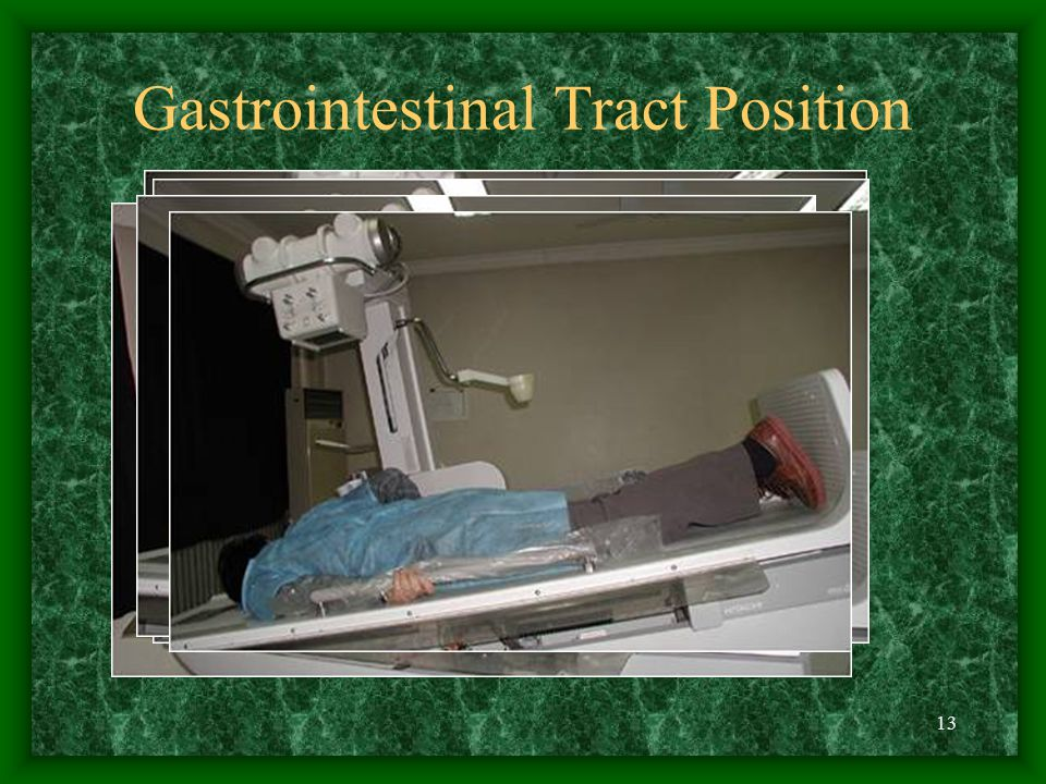 13 Gastrointestinal Tract Position
