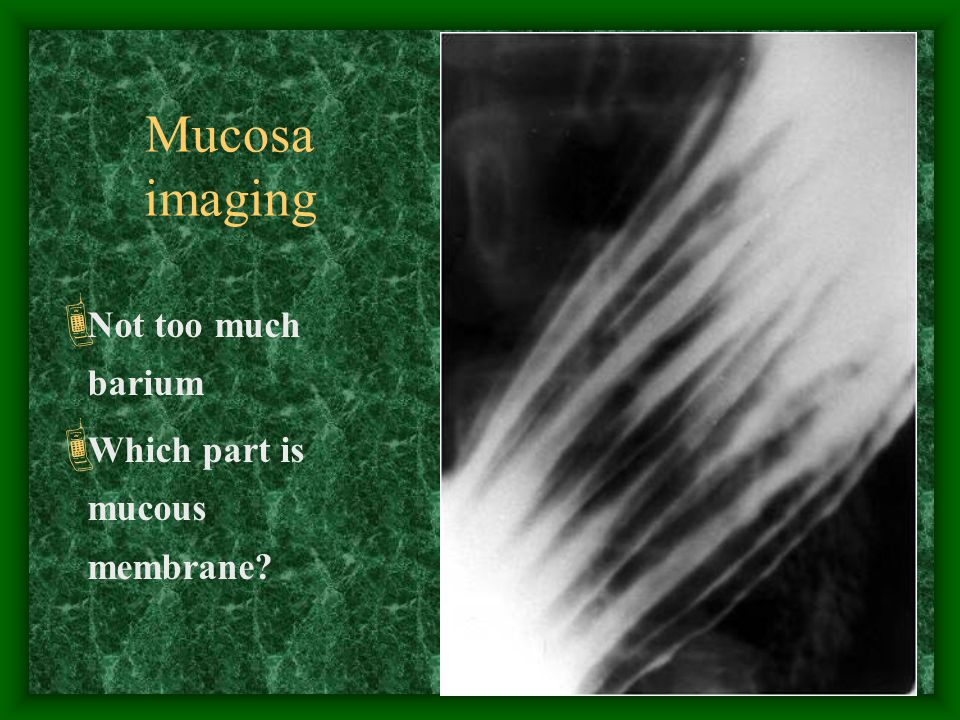 16 Mucosa imaging  Not too much barium  Which part is mucous membrane