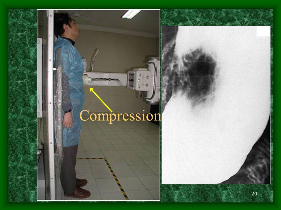 20 Compression