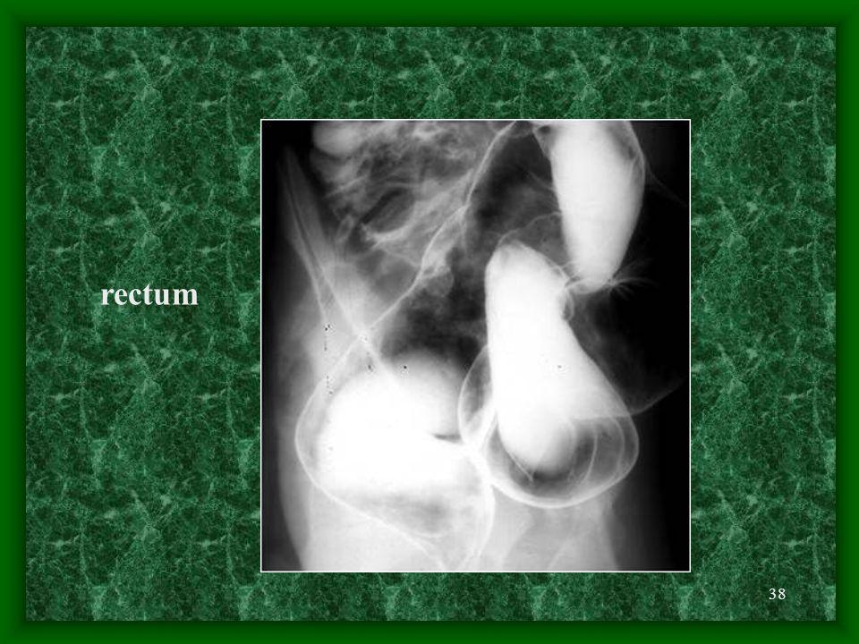 38 rectum