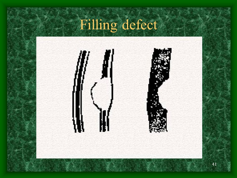 41 Filling defect