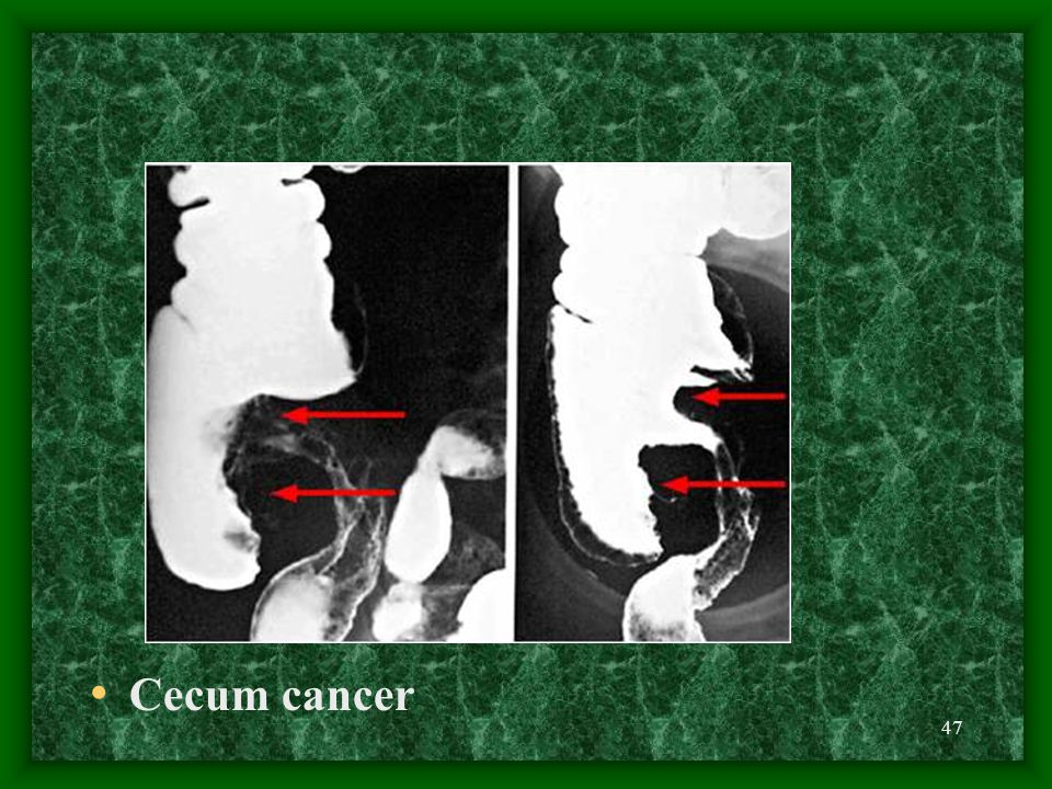 47 Cecum cancer