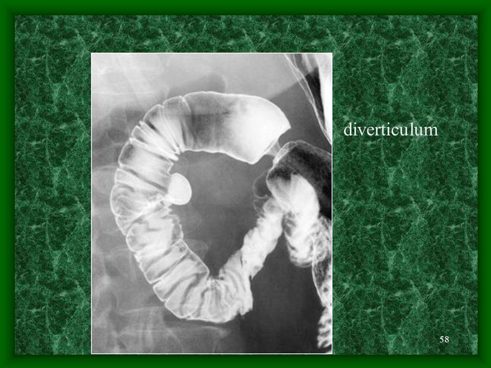 58 diverticulum