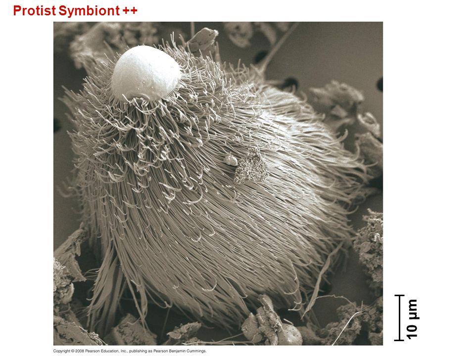 Protist Symbiont ++ 10 µm