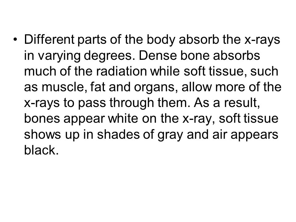 Different parts of the body absorb the x-rays in varying degrees. Dense bone absorbs much of the radiation while soft tissue, such as muscle, fat and