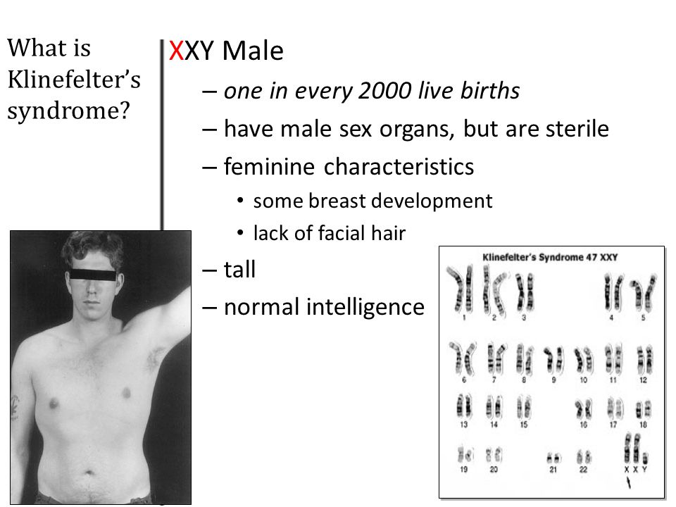 What is Turner's Syndrome: Monosomy X? XO Females Phenotypically female (short stature, swelling, broad chest, webbed neck, los set ears, etc) Sterile